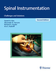Spinal Instrumentation: Challenges and Solutions