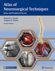 Atlas of Neurosurgical Techniques: Spine and Peripheral Nerves